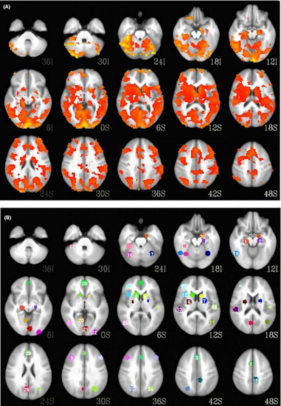 MRI scans of bipolar patient and a healthy patient
