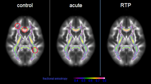 Mean fractional anisotropy in white matter