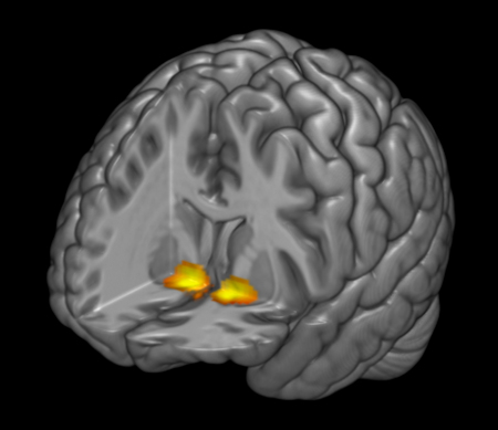 Image of reward-related activity in the ventral striatum