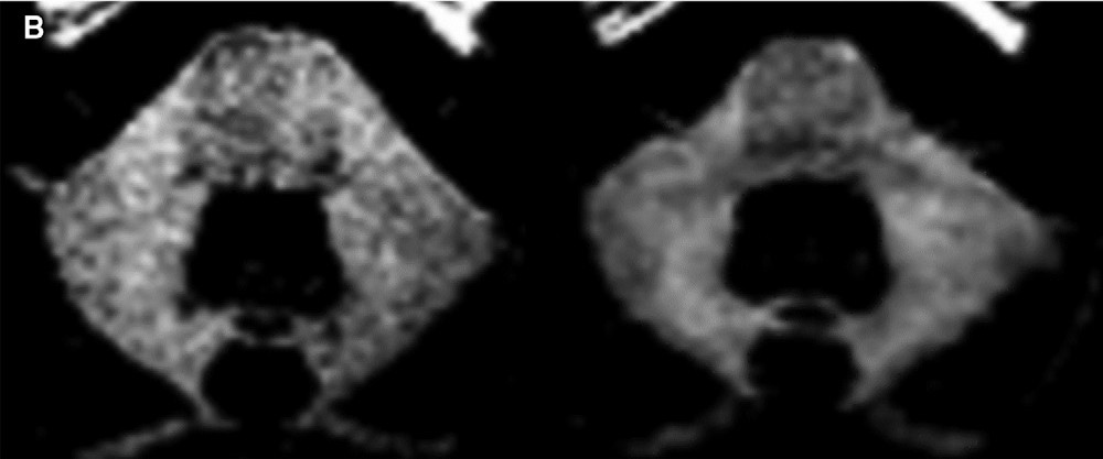Unenhanced T1-weighted MR image