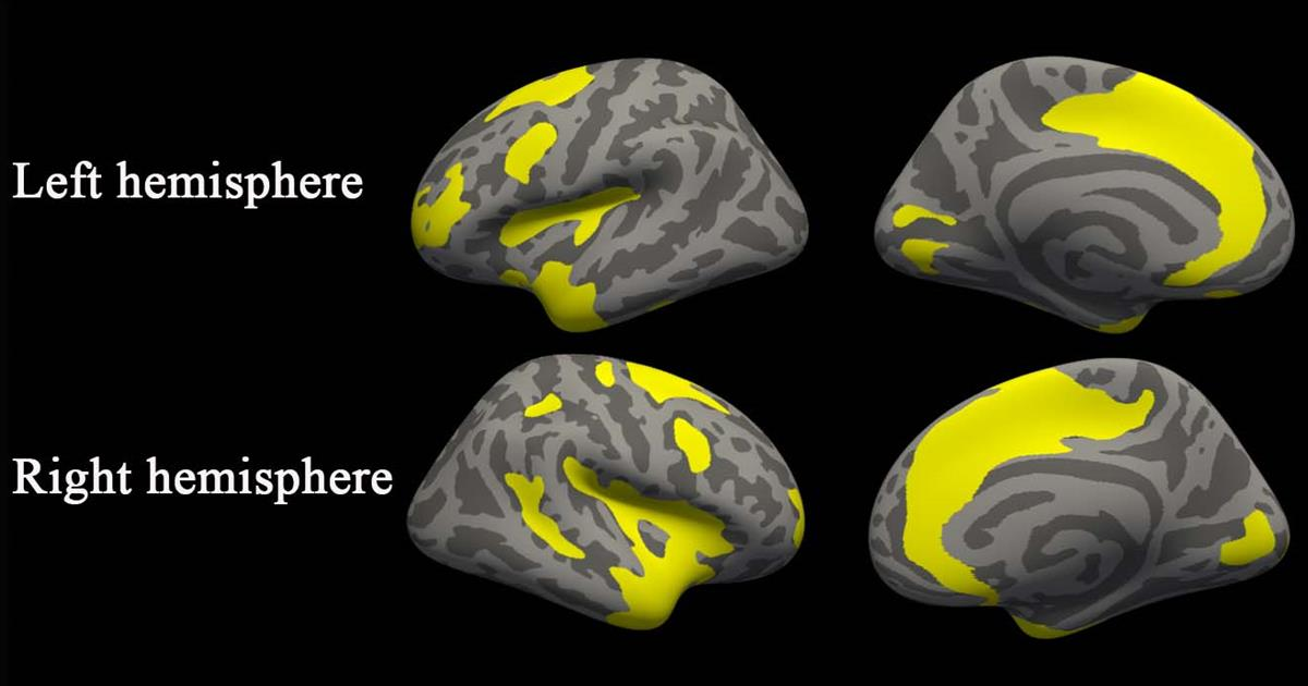 MRI reveals brain changes caused by depression, anxiety