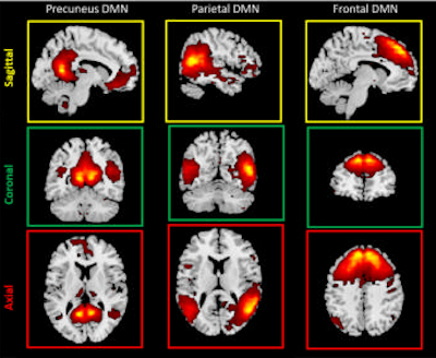 MR images of the default mode network subcomponents