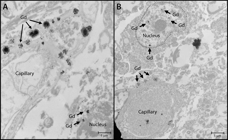 Nuclear localization of gadolinium deposits