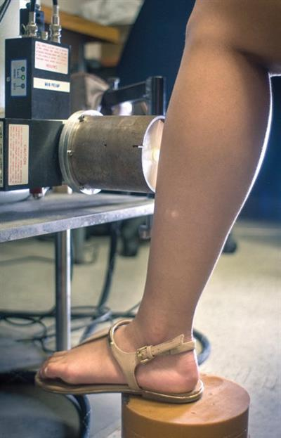 Subjects placed their leg directly in front of the XRF source