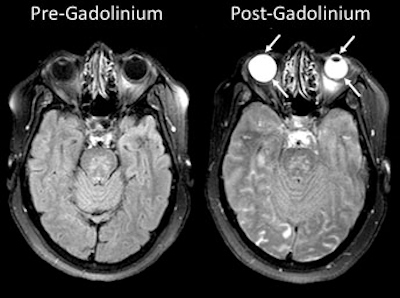 MRI scans show gadolinium leakage in the eyes