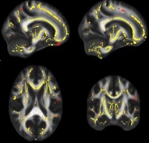DTI-MRI shows where functionality of white matter is associated with higher fitness