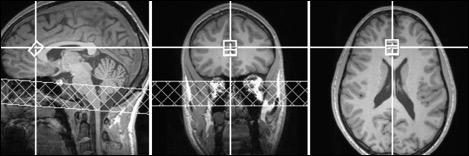 Brain MR images after ADHD medication
