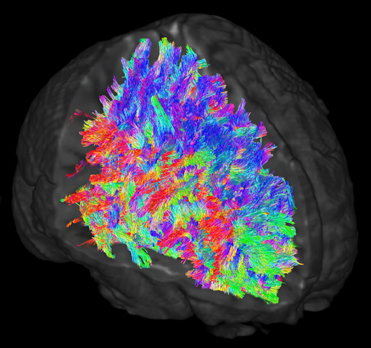White-matter tracts in the brain