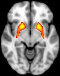 fMRI shows dysfunction in the striatum