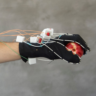 Novel MRI scanner fits extremity imaging like a glove