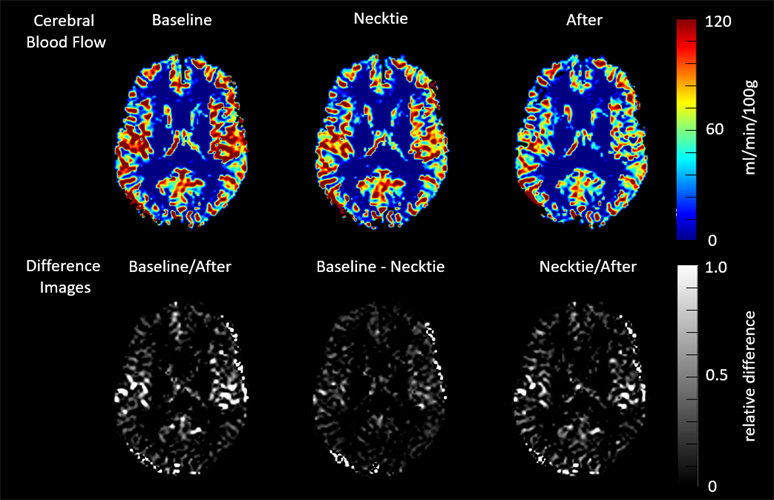 MR images show changes in cerebral blood flow