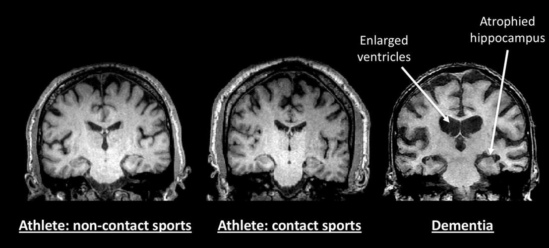 Brain MRI scans of noncontact-sport athlete, contact-sport athlete, and person with dementia, for comparison
