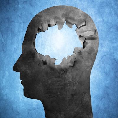 PET model tracks beta amyloid, Alzheimer's risk