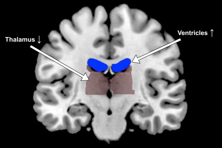 Functional MRI shows expanded ventricles and more compact thalamus