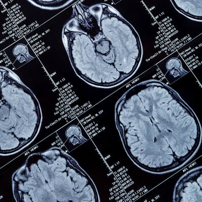 MRI shows brain changes from cannabis use