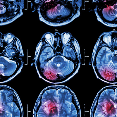 Study reveals steep cost of delaying stroke treatment
