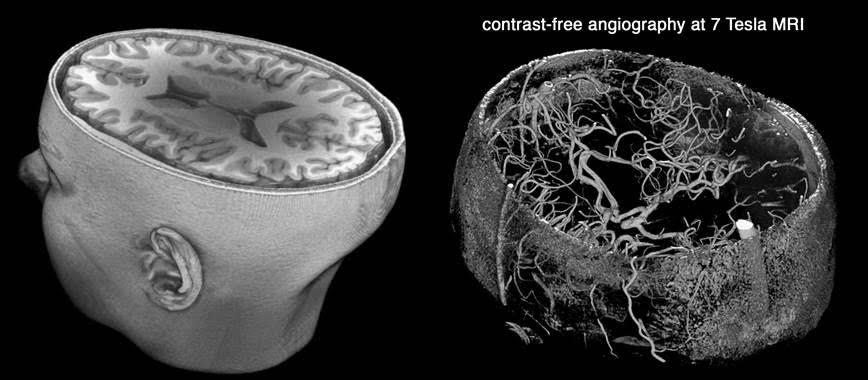 3D rendering of 7-tesla brain MRI and MR angiography image without contrast