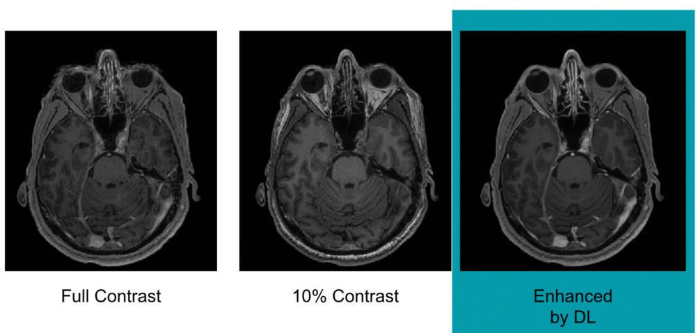 Images show differences in image quality based on the amount of gadolinium-based contrast administered