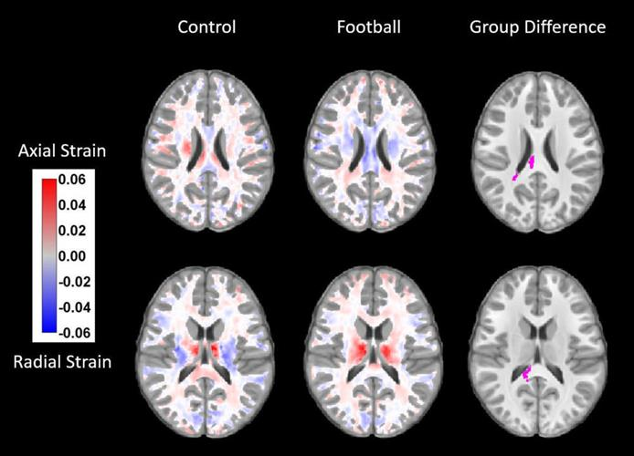 Brain MRI scans display statistically significant changes between the brains of kids before and after football season