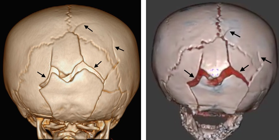 An 18-month-old girl with multiple skull fractures visible on 3D head CT and 3D black bone MRI scans