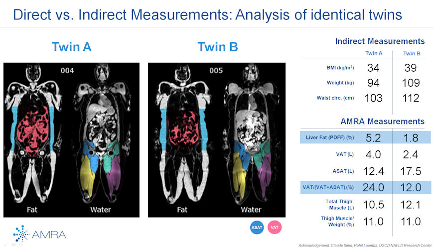 AMRA Profiler software shows different measurements derived from body fat analysis of identical twins