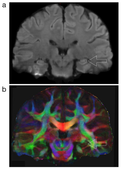 High-resolution DWI-MRI shows the structural connection to the hippocampus