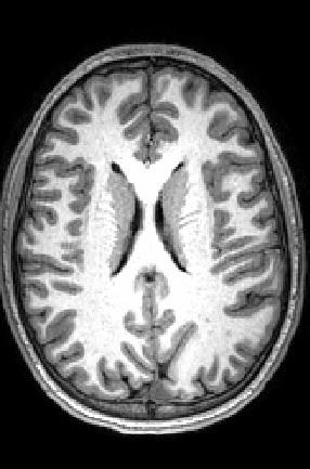 MR image showing gray and white matter
