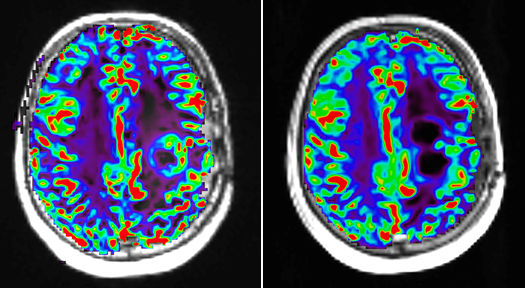 Perfusion MRI image with dynamic susceptibility-weighted protocol shows activity of glioblastoma tumor before and after pharmaceutical therapy