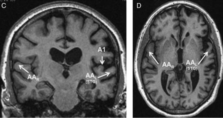 Brain MRI from one of the four patients in the study