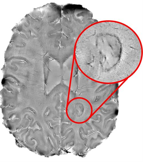 "Chronic active lesions appearing as dark-rimmed spots on brain MRI scans, indicating ""smoldering"" inflammation, a sign of debilitating multiple sclerosis"