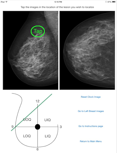 Mammography Localizer app