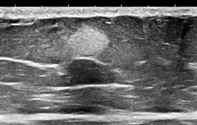 Ultrasound of abdominal wall