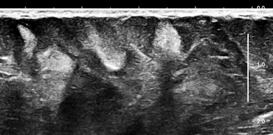 Ultrasound of anterior abdominal wall
