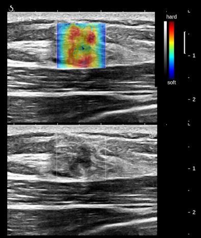 Follicular neoplasm of the thyroid on ultrasound