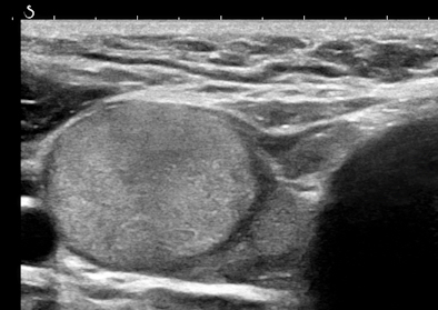 8-mm nodule in parenchyma on ultrasound