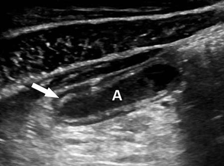 Long-axis sonogram of the distal appendix