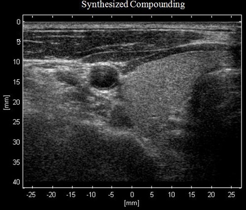 Synthesized spatially compounded image of thyroid
