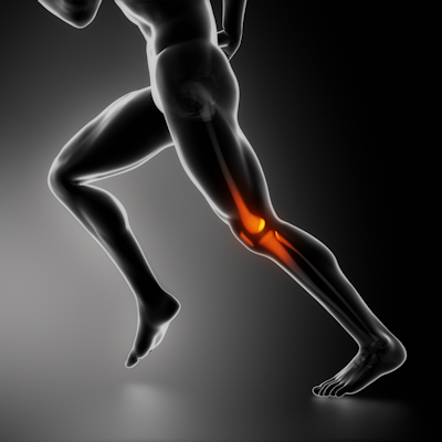 MRI for knee pain adds cost with negligible benefit