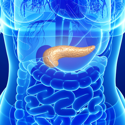 Can radiomics detect pancreatic ductal adenocarcinoma?