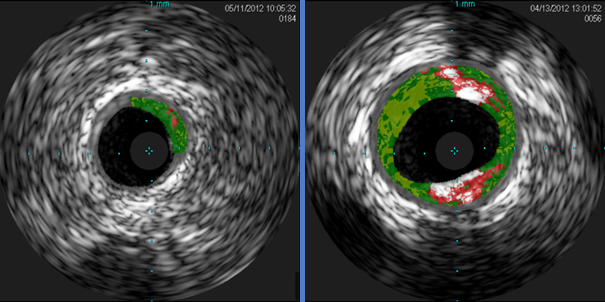 Cross-sectional IVUS images of coronary arteries