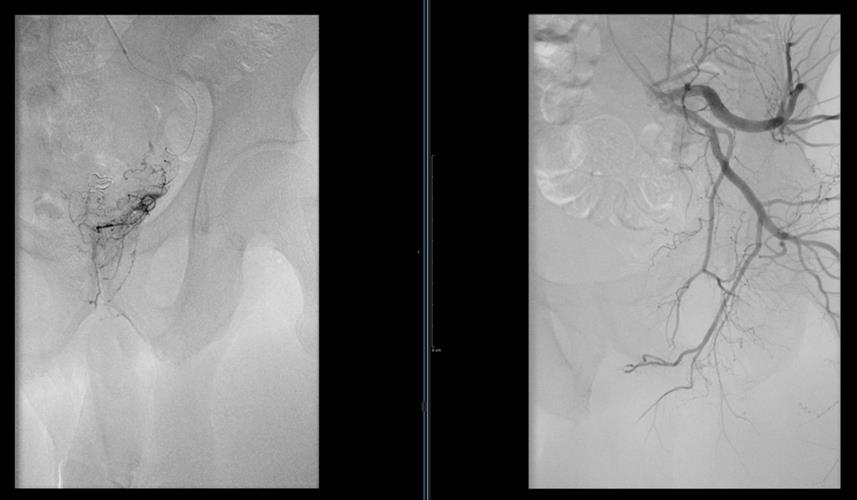 Angiogram of the left internal iliac artery and selective catheterization of the left prostatic artery