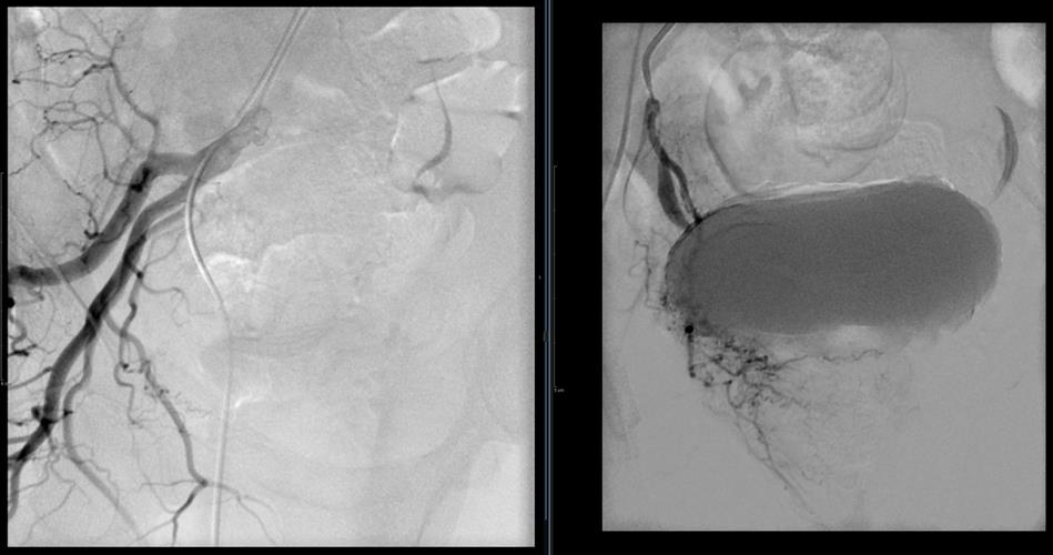 Angiogram of the right internal iliac artery and selective catheterization of the right prostatic artery