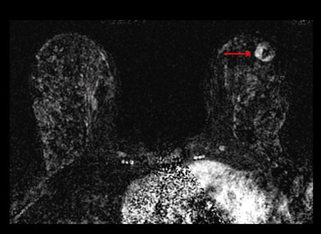 contrast-enhanced MRI