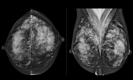 mammography image dense breast tissue
