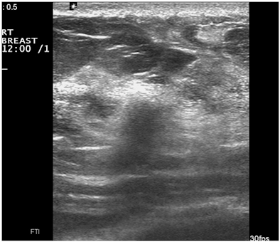Deterioration with use of spatial compounding in ultrasound