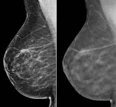 Tomosynthesis mammography radiation dose
