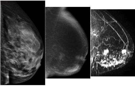 Breast pain ultrasound cloudy mammogram