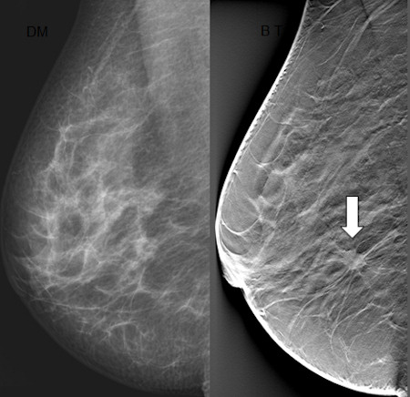 what is digital mammography with tomosynthesis Digital mammography is also utilized in stereotactic ge's digital imaging units typically cost us$300,000 to also known as digital breast tomosynthesis.
