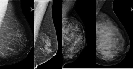 Don't Blame Breast Density; $$$ Toxicity; Nurse Ratched Returns