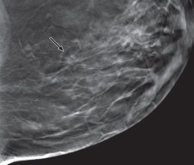 tomosynthesis vs digital mammography Digital tomosynthesis of the breast is different from a standard mammogram in the same way a ct scan of the chest is different from a standard chest x-ray or think of the difference between a ball and a circle.